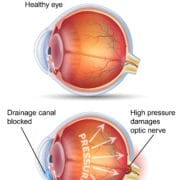 Glaucoma Eye Care Consultation Springfield Massachusetts