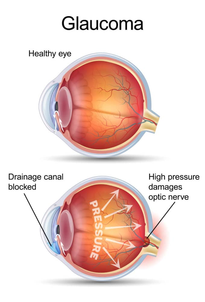 Glaucoma Risk Factors: Knowing The Warning Signs | Papale Eye Center