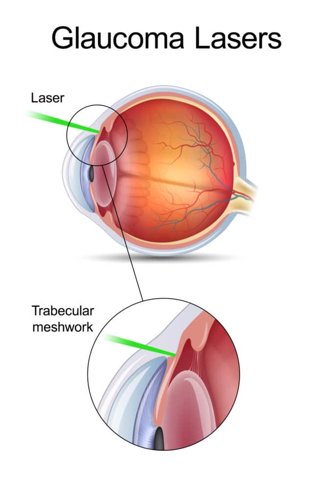 Glaucoma-Lasers