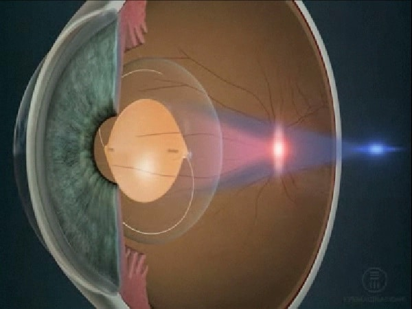 lens implants