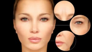 Botox Springfield MA | Papale Eye Center