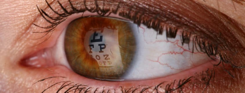 close up of eyeball, cataract treatment western MA, cataracts springfield MA, cataract surgeon Springfield MA